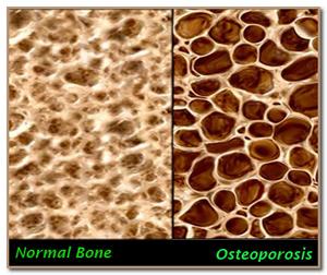 структура нормальной и пораженной остеопорозом кости