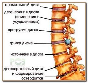 osteoxondros aetapi