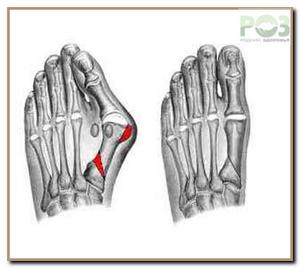 Боли в левой части ноги