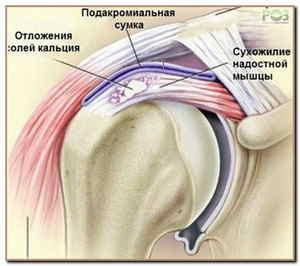 причина боли в плечевом суставе