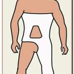 обездвиживание суставов