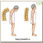 остеомаляция вместе с остепорозом