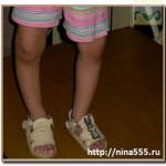 рахит-остеомаляция у детей